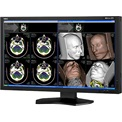 "NEC Medical 30"" MD302C4 2560x1600 - IPS Fekete monitor"